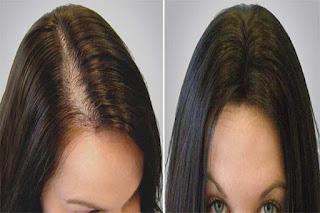 Kadınlarda Saç Ekimi Nasıl Yapılır