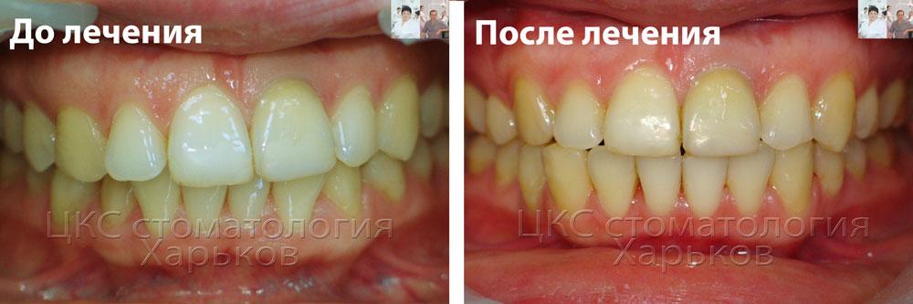 Сдвиг челюстного сустава при брекетах отек одного или нескольких суставов