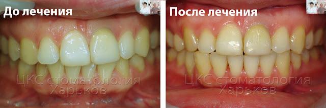 Фото до и после лечения центра зубов