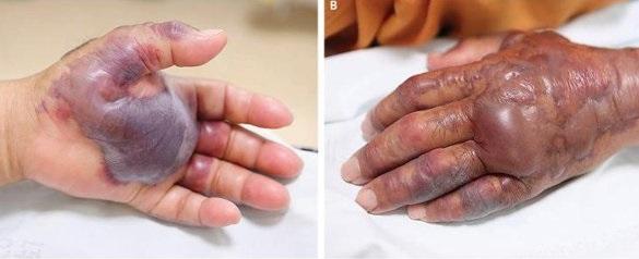 Người đàn ông Hàn Quốc bị cắt cụt tay vì ăn Hàu sống