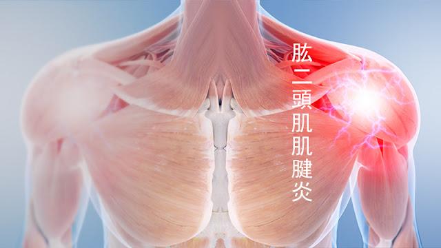 肱二頭肌肌腱炎 肩膀 手臂