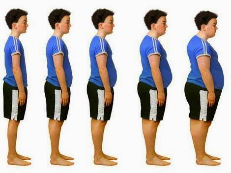 Obesity clinic velachery, chennai, ஒபேசிட்டி மருத்துவம் சென்னை வேளச்சேரி
