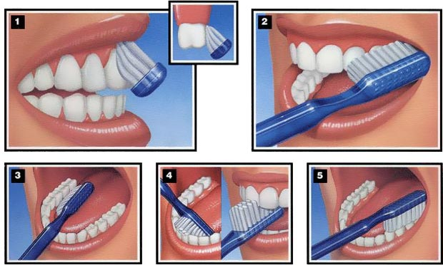 10 Cara Memutihkan Gigi Secara Alami Dan Cepat Info Dan Tips Kesehatan