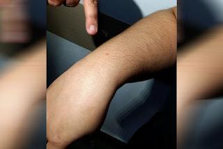 Sobe para 32 o número de pessoas vítimas de agulhadas no São João de Campina