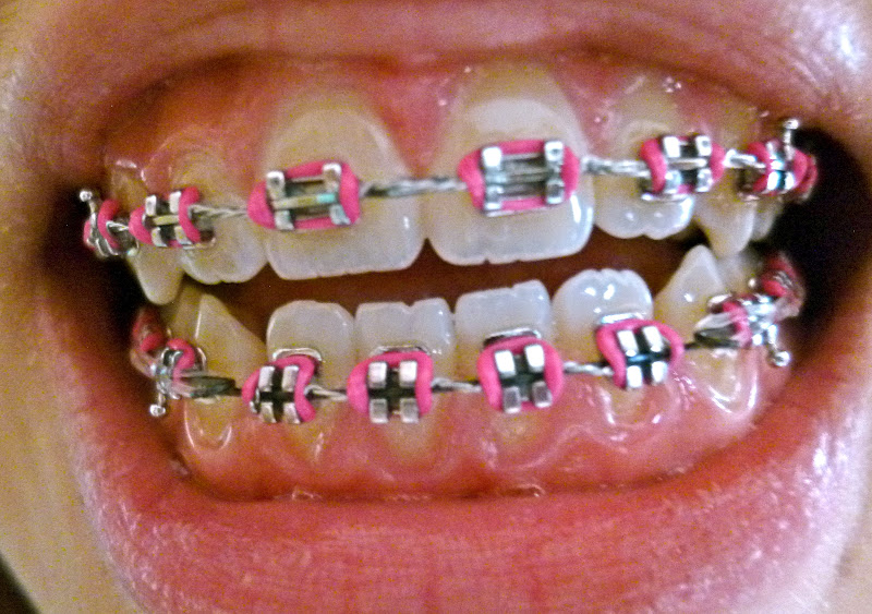 how to close up gaps in teeth without braces