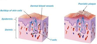 Kenali Gejala dan Pencegahan Psoriasis untuk Kulit yang Lebih Indah