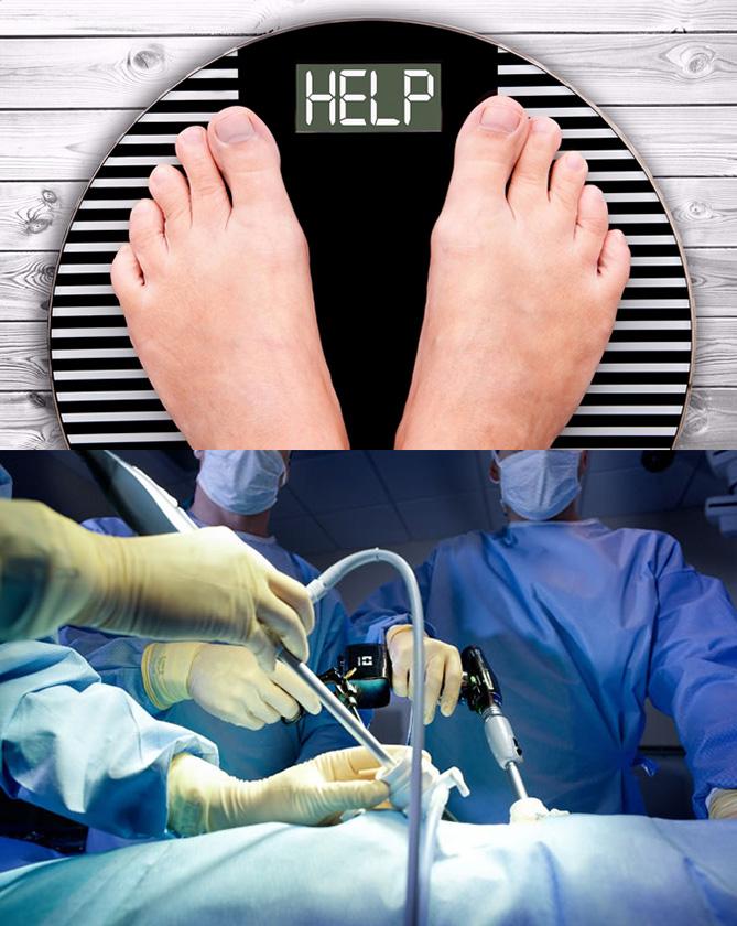 ¿Es la cirugía de gastrectomía en manga una eficaz cura de..