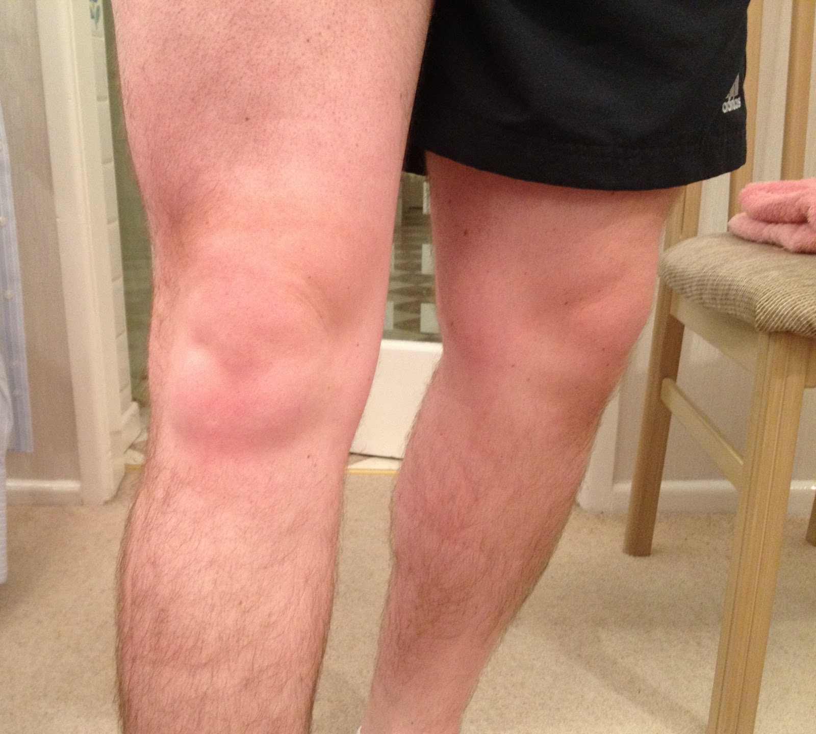 Knee Pain Cycling : Andy-wood.biz