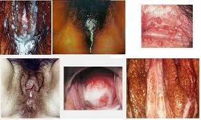 Image Obat penyakit dalam kelamin bernanah