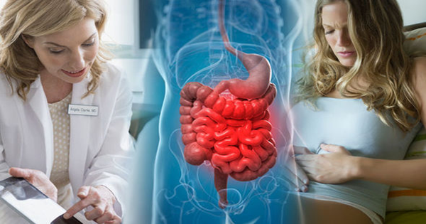 পরিপাকতন্ত্রের প্রদাহজনিত রোগ IBS, IBD, Ulcerative Colitis, Crohn's Disease এর  চিকিৎসা