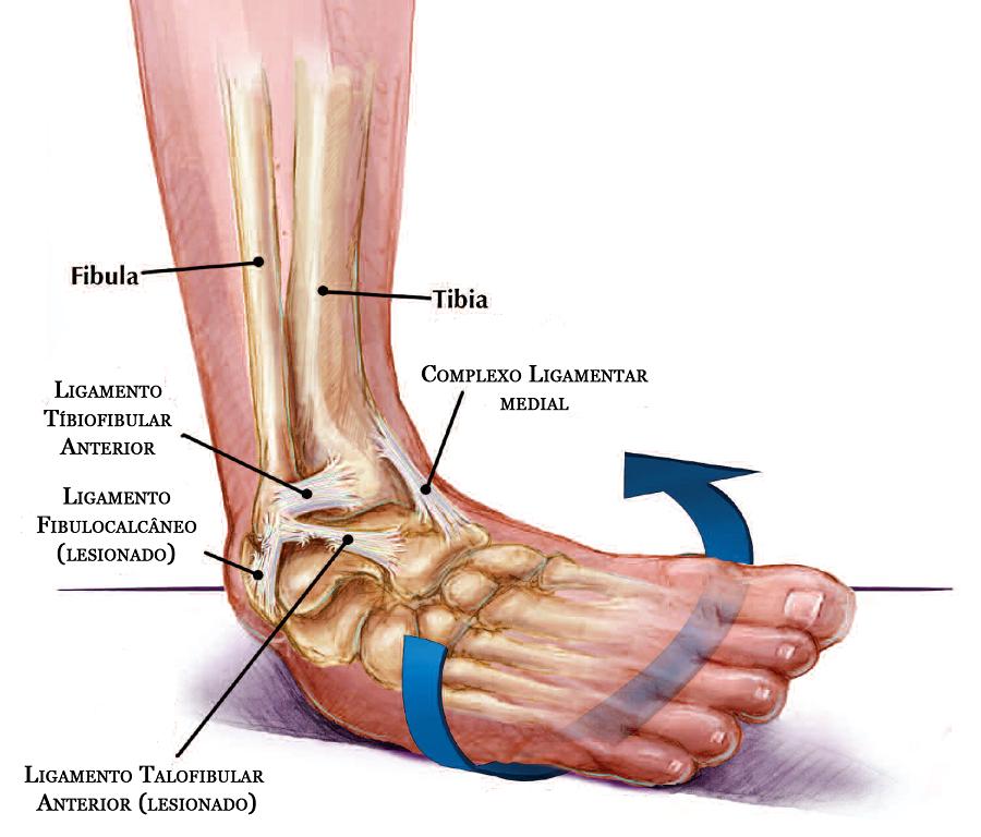 cd1db488c A lesão mais comum é a ruptura parcial ou total dos ligamentos e da cápsula  articular lateral do tornozelo, o chamado complexo ligamentar lateral.
