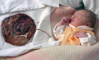 Teknik Persalinan Lotus Birth