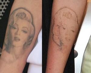 Cara menghilangkan tatto permanen atau temporer
