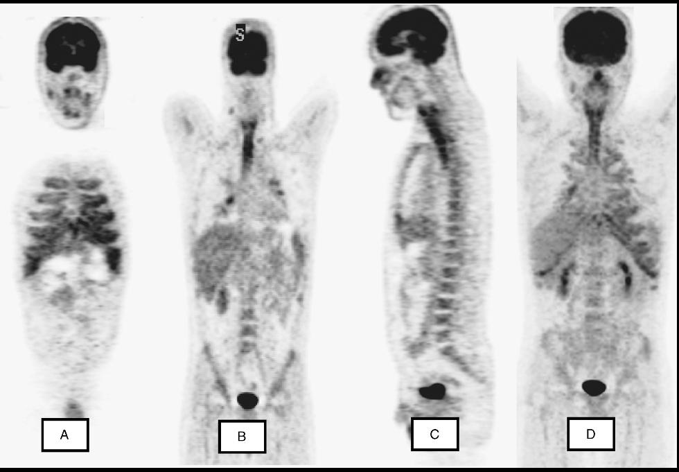 Hospitalist ~病院総合診療醫~: Relapsing Polychondritis 再発性多発軟骨炎