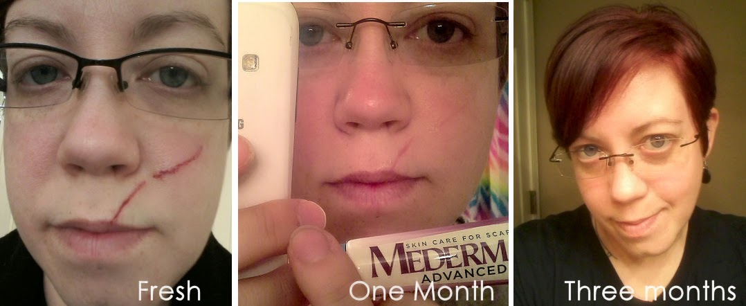 Mederma Results Review