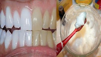 clarear o dente em casa