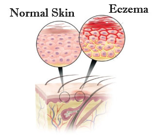 Eczema ko door bhagane ke gharelu nuskhe.