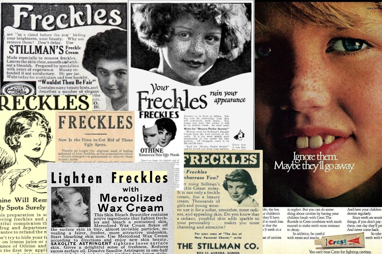 anti freckles vintage retro advertisement