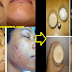 How To Get Rid Of Black Spots On Your Face Safe And Fast