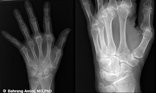 X-ray of hand in hemochromatosis