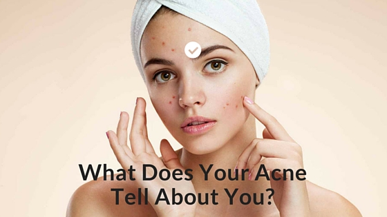 what are the causes of acne