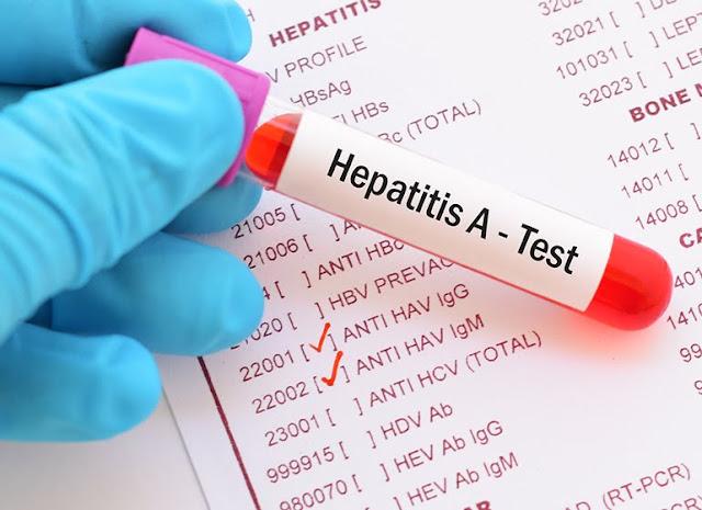 Apa Itu Penyakit Hepatitis? Ketahui Penyebab, Gejala, Resiko, Pencegahan dan Pengobatannya