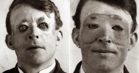 Walter Yeo The First Person to Have Plastic Surgery ...  Walter Yeo Skin Graft