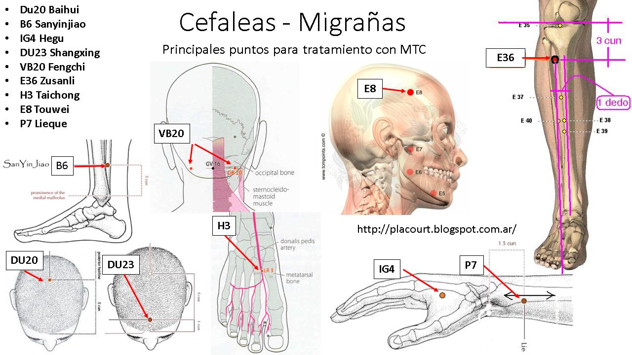 Cefaleas - Migrañas. Tratamiento con MTC | el Blog de Pablo Lacourt