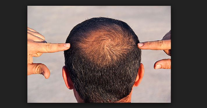 How Thyroid make you Hair Balding