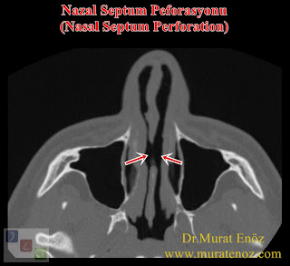Repair of nasal septum perforation with rib cartilage - Repairing of septum peforation - Closure of nasal septum perforation with rib cartilage - Nasal septum perforation rapairing surgery - Treatment of large septal perforation - Nasal septum perforation repair in Istanbul