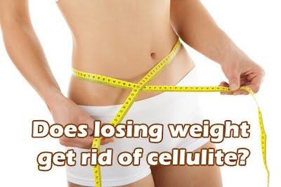 Can losing weight help you eliminate cellulite