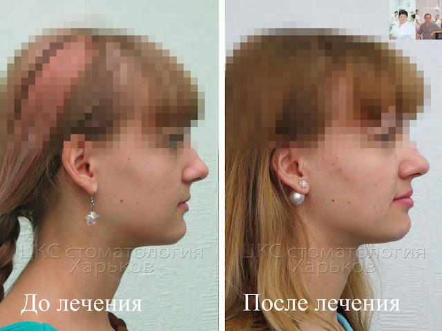 Стоматолог улучшает пропорции лица