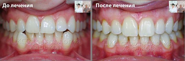 До и после лечения ортодонтического лечения