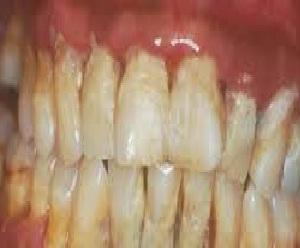 biaya membersihkan karang gigi harga alat pembersih di puskemas yogyakarta  2015 074e5e1c3b