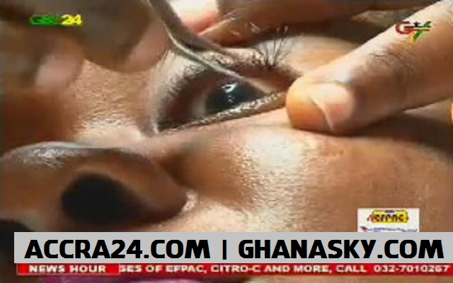 SHS graduate goes blind after fixing artificial eyelashes [Video]