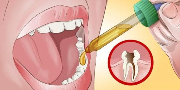 Cara Meredakan Sakit Gigi Tanpa Menunggu Sampai 1 Jam f9b4b0c1ea