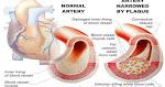 https://2.bp.blogspot.com/-dM7aBFUGBiI/WhdX5TcEGQI/AAAAAAAACMY/niXgEm41O0wA00u4xadUWhdZZH8uJIelwCLcBGAs/w150-h79-p-k/10-foods-that-unclog-arteries-naturally.jpg