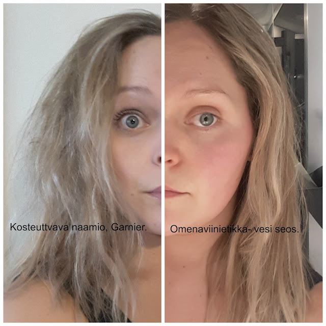 etikka hiushuuhde