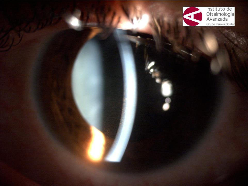 ac15cafe81 El síndrome de dispersión pigmentaria (SDP) se caracteriza por una  liberación de pigmento del epitelio iridiano, que se deposita en el  segmento anterior ...