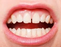 Có cách làm răng bớt thưa tại nhà hay không?