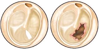 Cara ampuh menyembuhkan gendang telinga berlobang