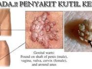 Obat Alami Untuk Hilangkan Kutil Sembuh Total