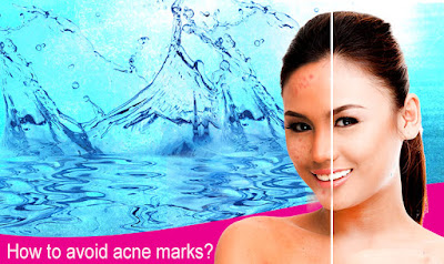 Avoid acne with beauche