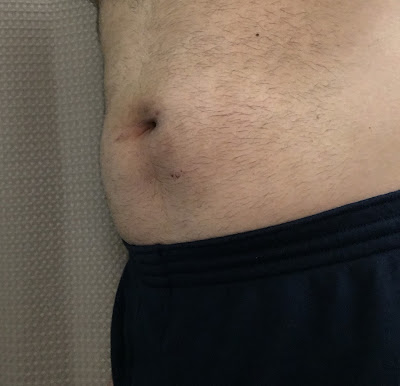 Three weeks after hernia repair at Shouldice  - left angle