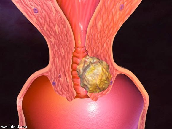 سرطان عنق الرحم وكيفية علاجه