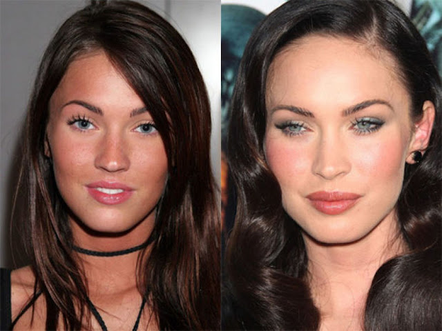 Top 5 Beautiful Celebs Before & After Botox