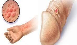 Penyebab Terkena Penyakit Sipilis