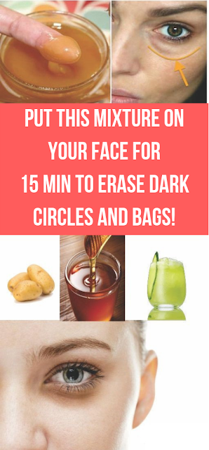 Put This Mixture on Your Face For 15 Min to ERASE Dark Circles and Bags!