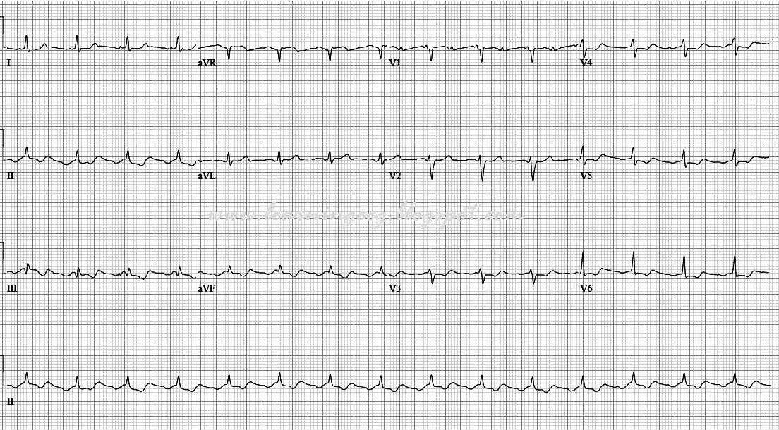 Ecg Rhythms Atrial Flutter Over Time. Petroleum Engineering Schools Online. Cell Phone Carriers In Hawaii. Certificates Of Liability Insurance. Auto Glass Repair San Jose I Need A Attorney. Military Science Course Eyebrow Tatoo Removal. Photo And Video Sharing Websites. Georgia Water And Fire Restoration. Fresno City College Police Academy