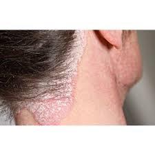 Foto Obat Gatal Bagian kulit memerah yang terasa tebal, kering, dan bersisik di wajah